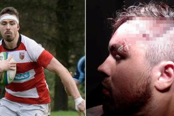 Kyle hangs up his boots after horrific head injury